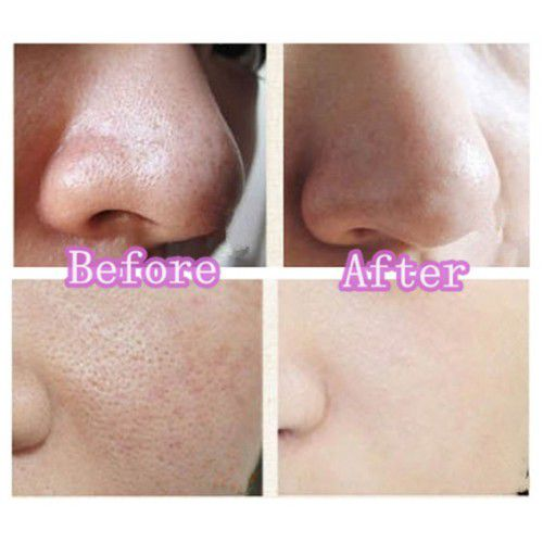 what is tretinoin cream for